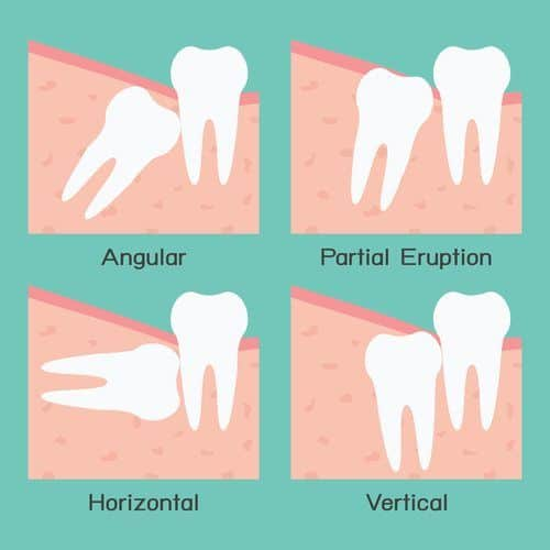vector showing four examples of wisdom teeth: angular, partial eruption, horizontal, and vertical